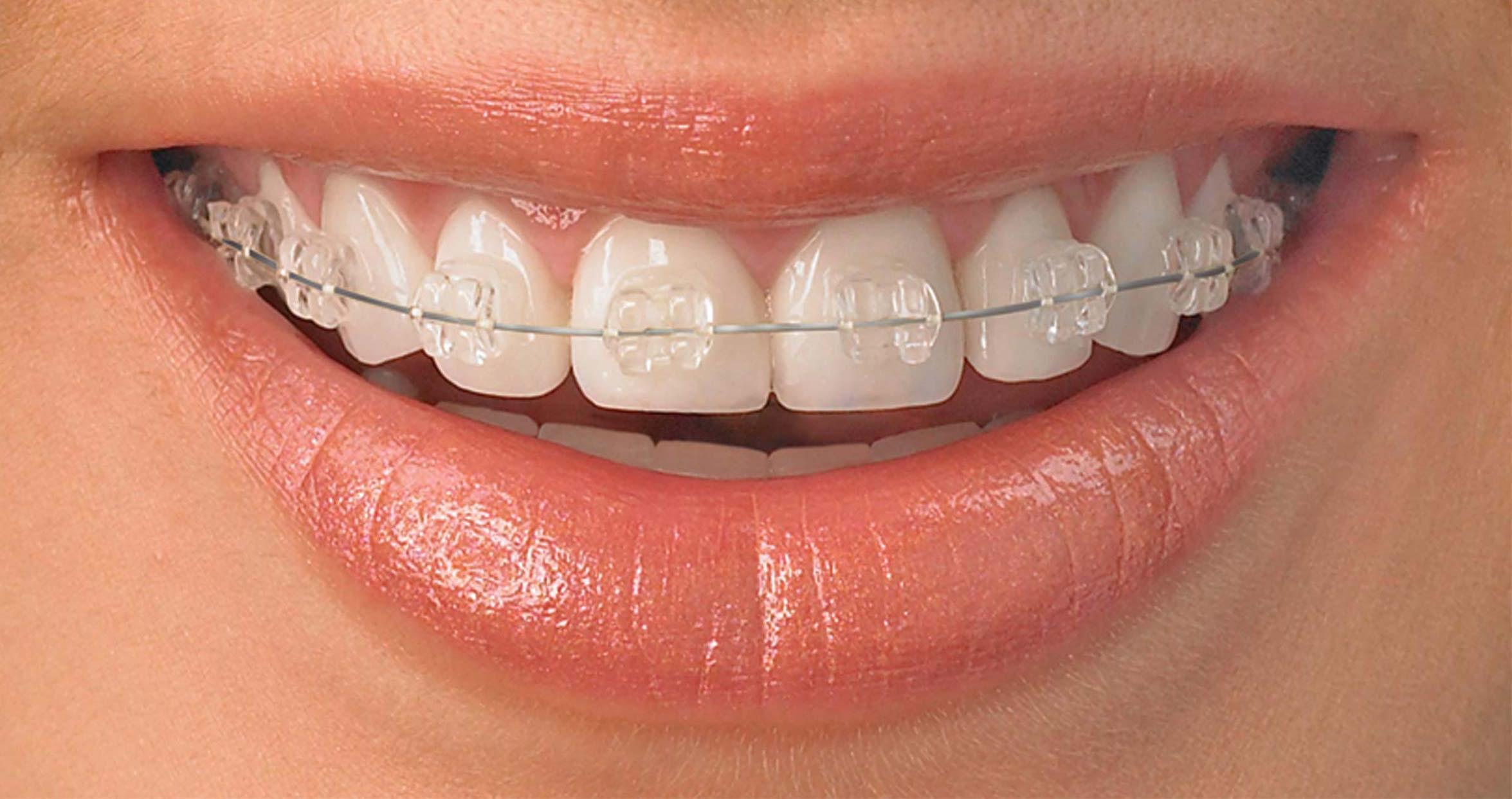 Houston-Dentists-for-Dental-braces