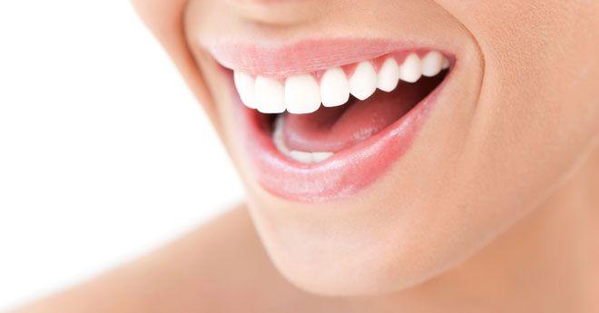 Smile White teeth