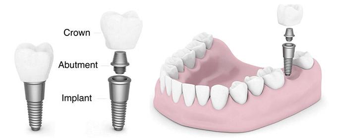 dental-implant 1