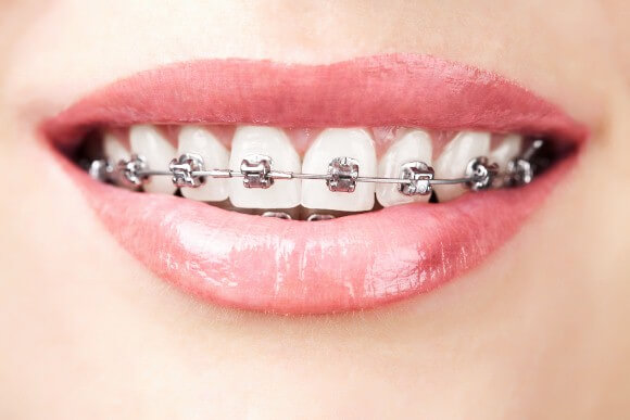 Dental-Braces-1vn