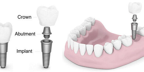 Dental-Implant 1
